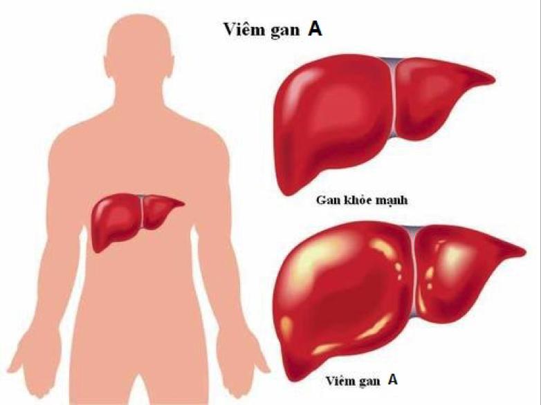 Người Việt Nam bị ung thư gan nhiều nhất thế giới