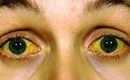 Da vàng xạm, mắt vàng là biểu hiện của bệnh viêm gan do rượu