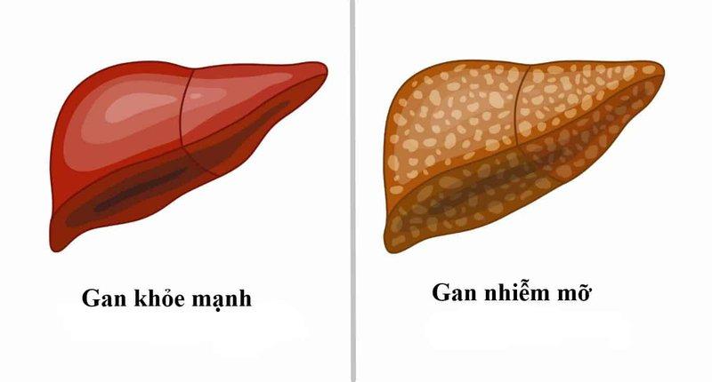 Cà gai leo hỗ trợ điều trị gan nhiễm mỡ